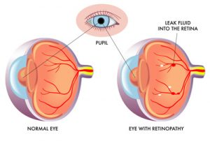 Diabetic Retinopathy Treatment in Temecula